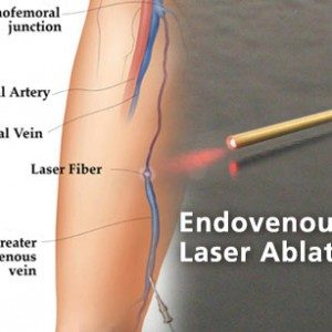 endovenous laser treatment in pune