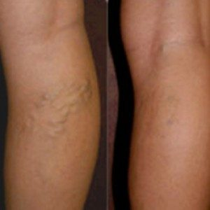 Varicose vein treatment in pune