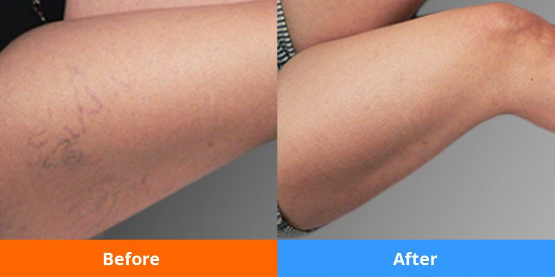 PRE AND POST PHOTOS OF SPIDER VEINS TREATMENT