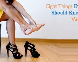 EIGHT THINGS EVERY WOMAN SHOULD KNOW ABOUT THE VARICOSE VEINS