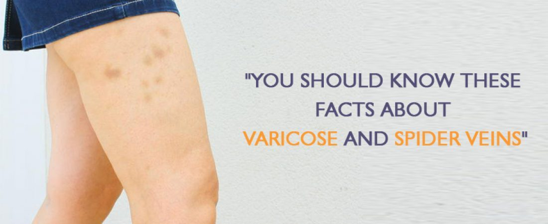 You should Know these facts about Varicose and Spider Veins