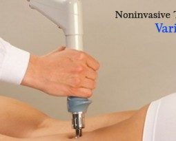 Endovenous Laser Treatment Pune – A Painless Technique to Acquire Freedom from Problematic Varicose Veins