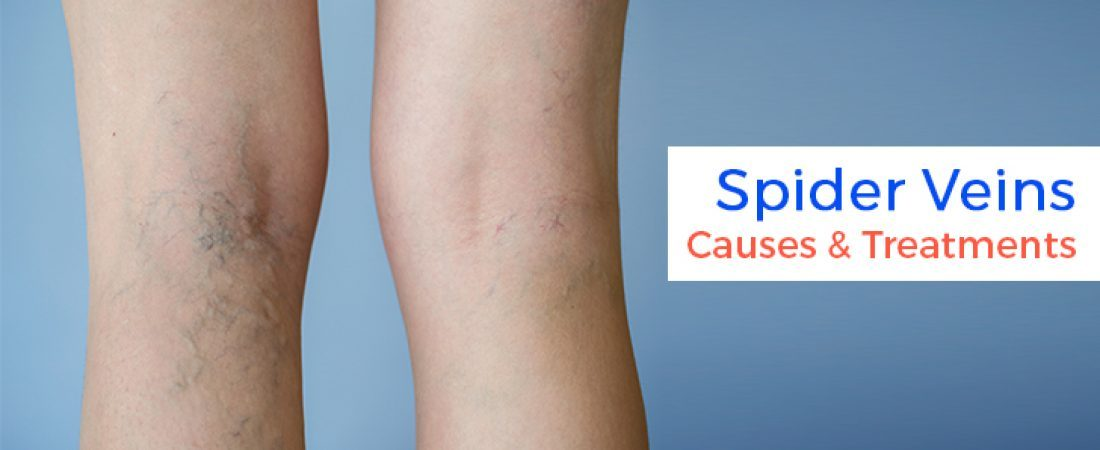 Spider Veins Causes & Treatments