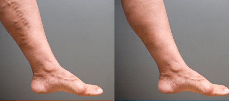 Get the best spider and varicose vein treatment