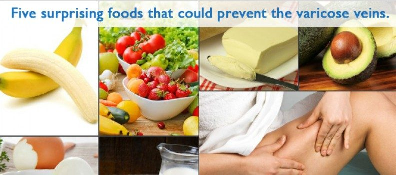 Five surprising foods that could prevent the varicose veins