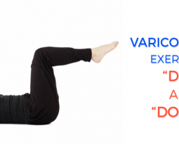 "Varicose veins exercises – ""Do""s and ""Don't""s"