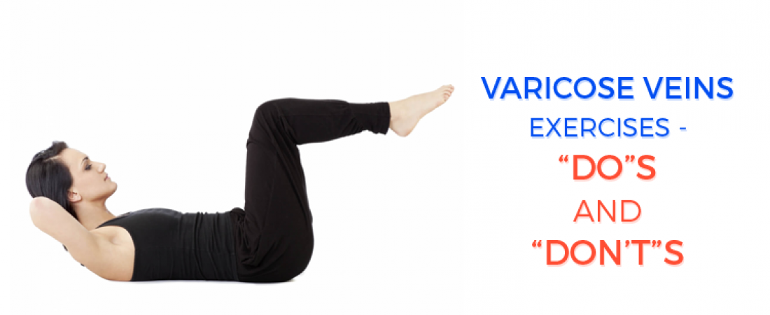 """Varicose veins exercises – """"Do""""s and """"Don't""""s"""