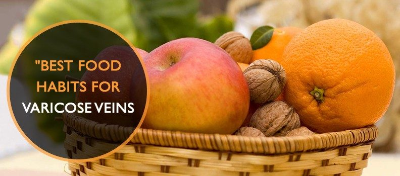 Best food habits for varicose veins remedy