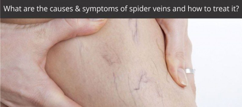 WHAT ARE THE CAUSES & SYMPTOMS OF SPIDER VEINS AND HOW TO TREAT IT?