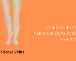 4 Crucial Facts About Varicose Veins Everyone Must Be Aware Of
