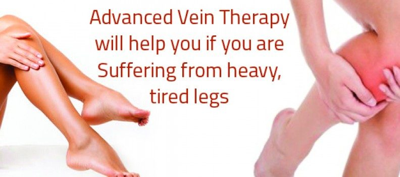 Advanced Vein Therapy will help you if you are suffering from heavy, tired legs