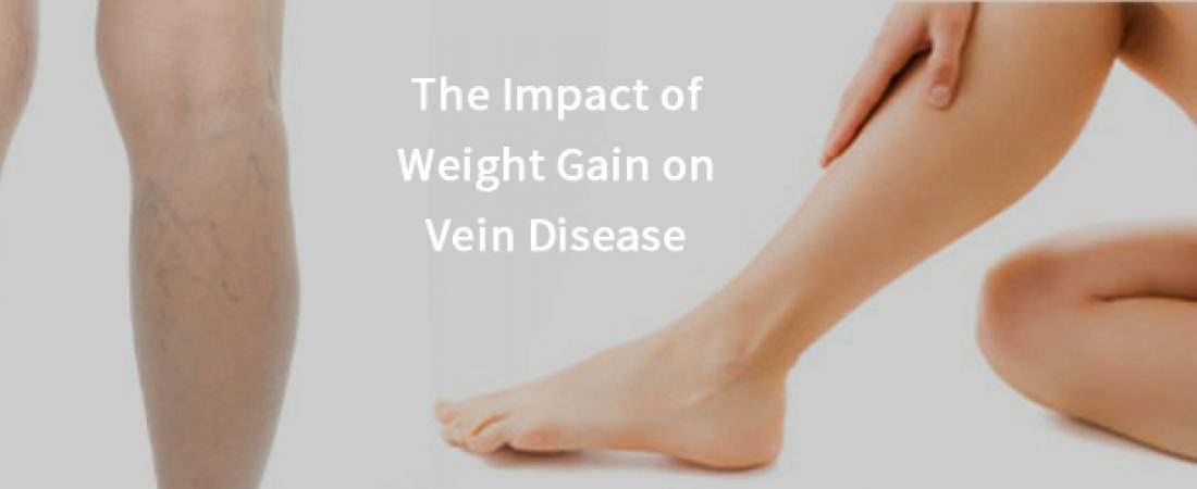 The Impact of Weight Gain on Vein Disease