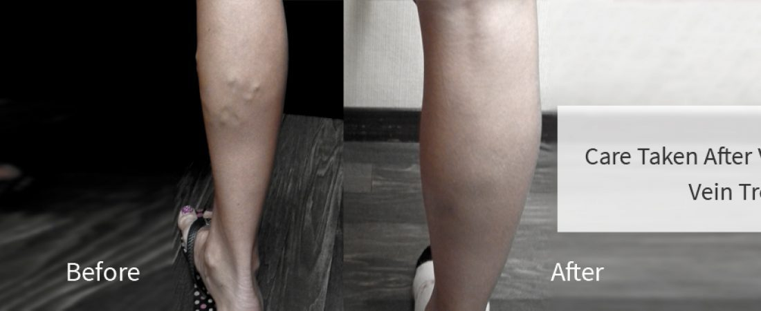 Care Taken After Varicose Vein Treatment