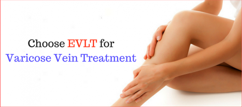 5 Reasons People Choose EVLT for Varicose Vein Treatment