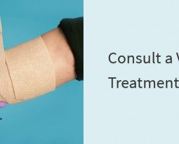 Consult a Varicose Vein Treatment Specialist