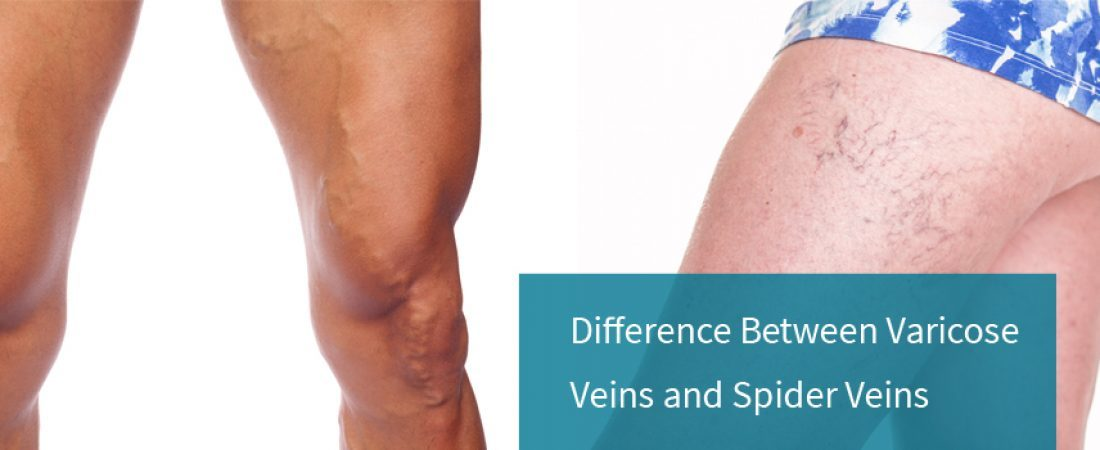 Difference between Varicose Veins and Spider Veins