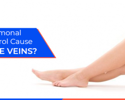Could Hormonal Birth Control Cause Varicose Veins?