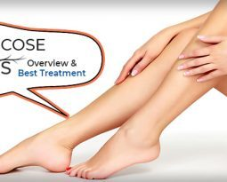 Varicose veins: Overview and Best Treatment