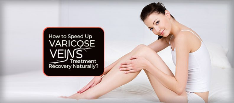 How to Speed Up Varicose Veins Treatment Recovery Naturally?