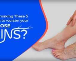 Are you making These 5 Mistakes to worsen your Varicose Veins?