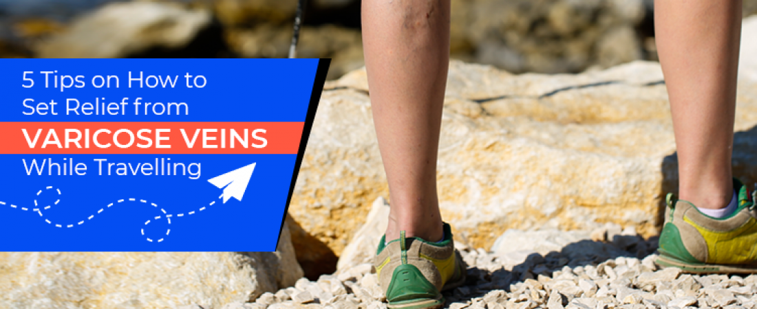 5 Tips on How to Set Relief from Varicose Veins While Travelling