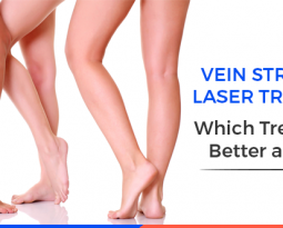 Vein Stripping and Laser Treatment: Which Treatment is Better and Why?