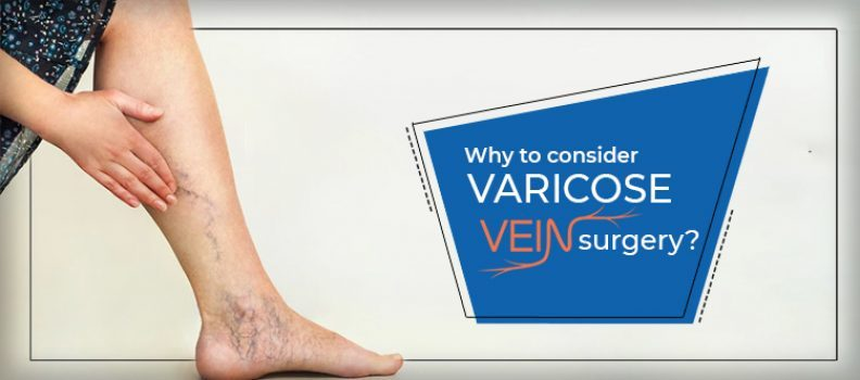 Why to Consider Varicose Vein Surgery?