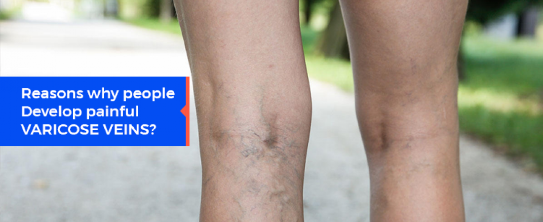 Reasons Why People Develop Painful Varicose Veins?