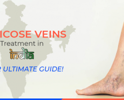 Varicose Veins Treatment in India – Your Ultimate Guide!