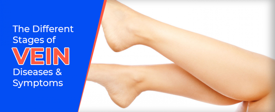 The Different Stages of Vein Diseases and Symptoms
