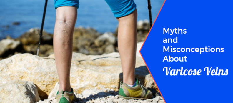 8 Myths and Misconceptions About Varicose Veins