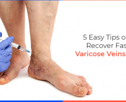 5 Easy Tips on How to Recover Faster Post Varicose Veins Treatment