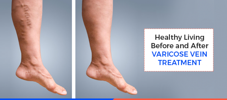 Healthy Living Before and After Varicose Vein Treatment
