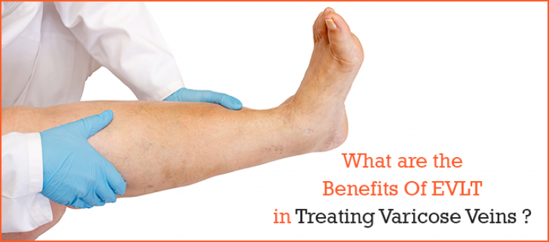 What Are The Benefits Of EVLT In Treating Varicose Veins ?