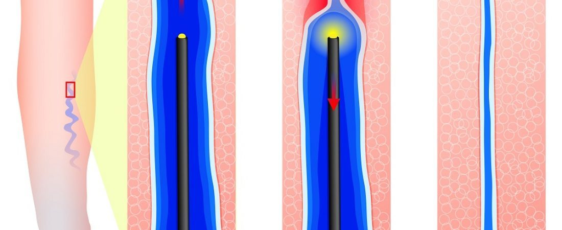 Schedule Your Endovenous Laser Treatment (EVLT) Today