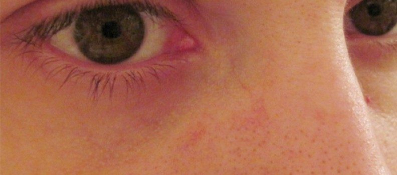 Are there Spider Veins on Your Face….?